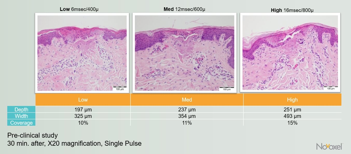Images of histopathology of skin immediately after treatment